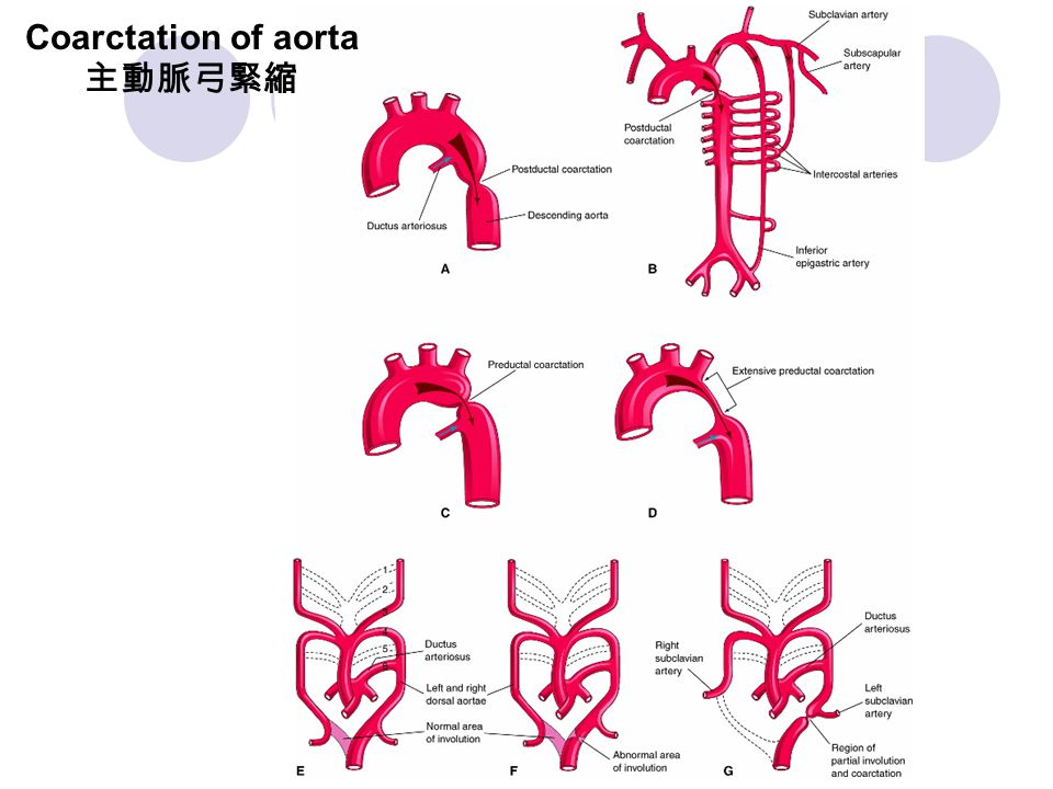 Coarctation of aorta 主動脈弓緊縮