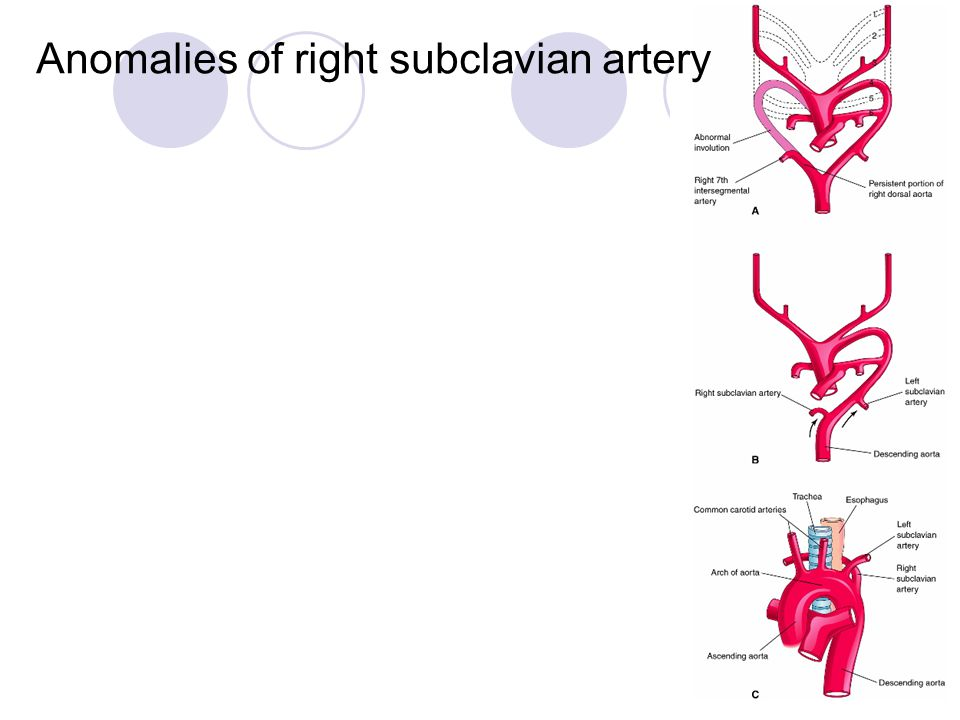 Anomalies of right subclavian artery