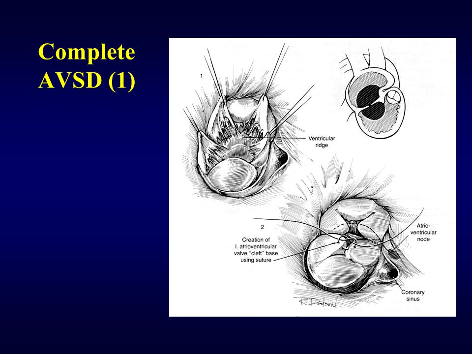 Complete AVSD (1)