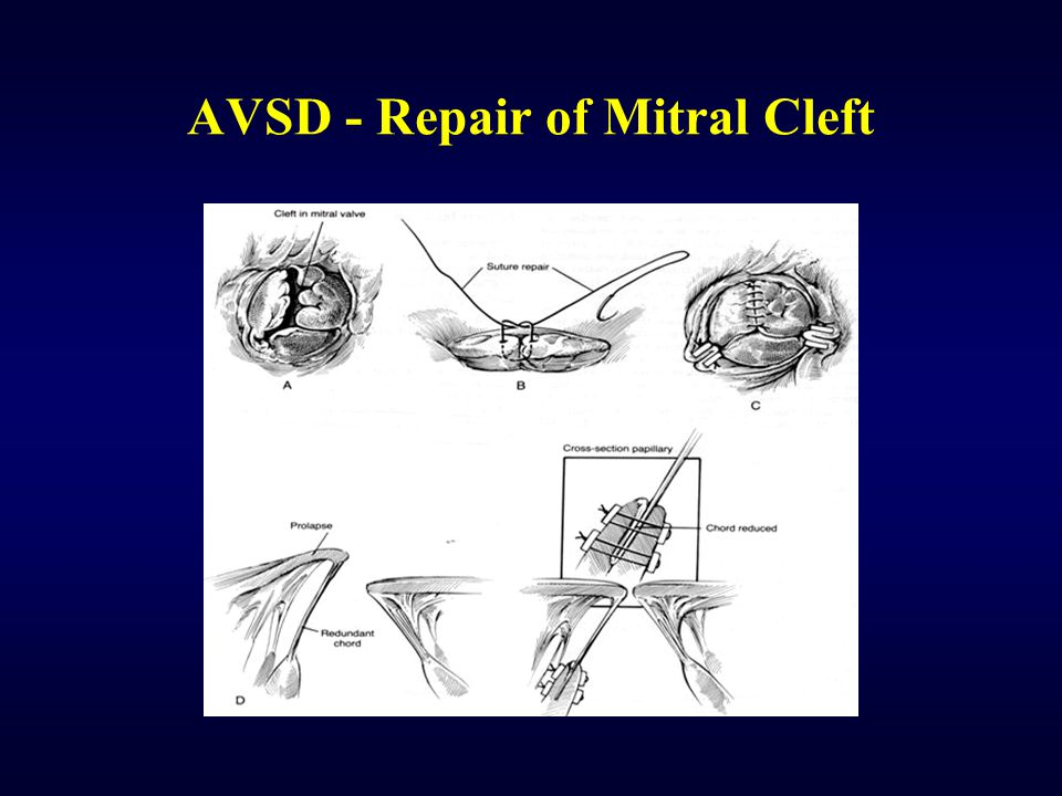 AVSD - Repair of Mitral Cleft
