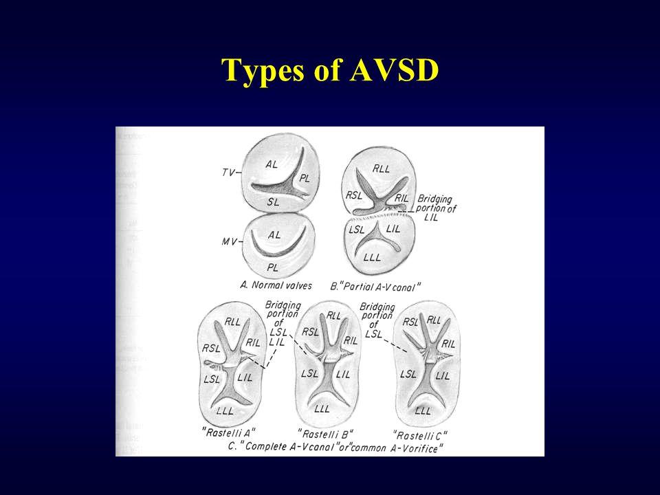 Types of AVSD