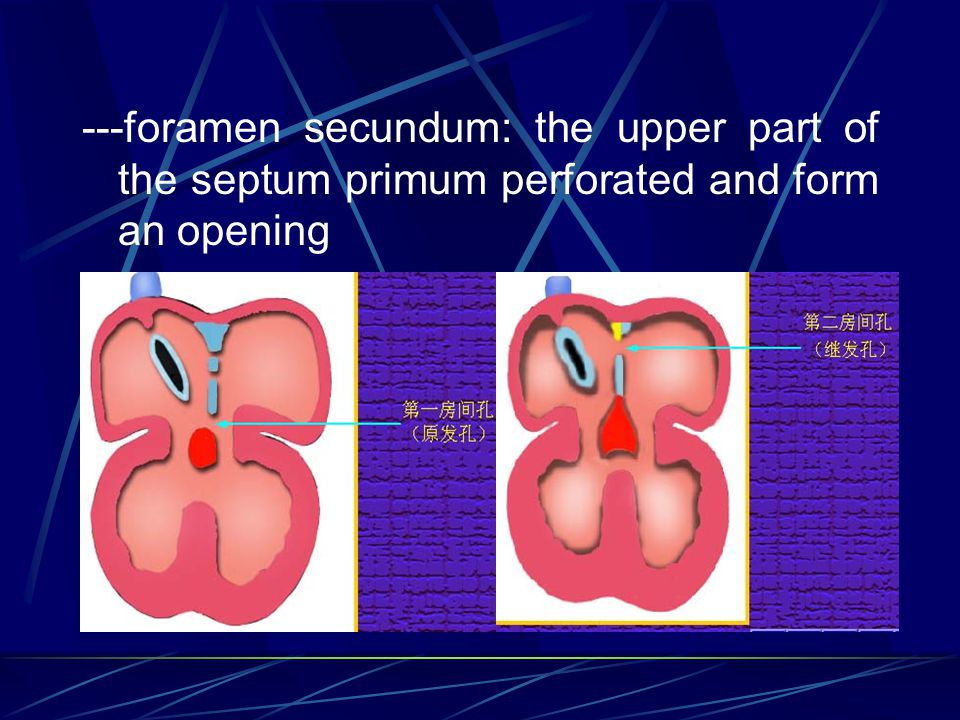 ---foramen secundum: the upper part of the septum primum perforated and form an opening
