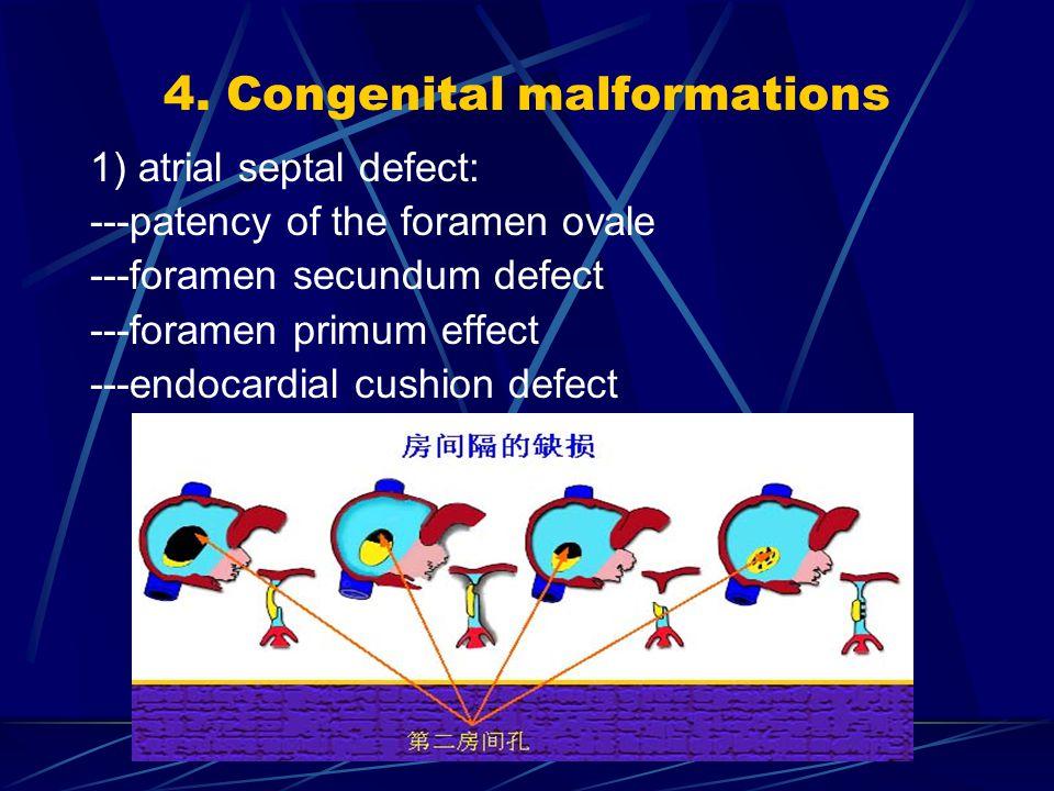 4. Congenital malformations