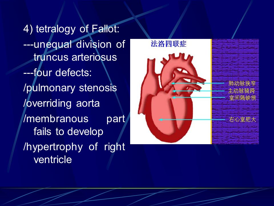 4) tetralogy of Fallot: ---unequal division of truncus arteriosus. ---four defects: /pulmonary stenosis.