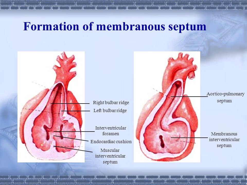 Formation of membranous septum
