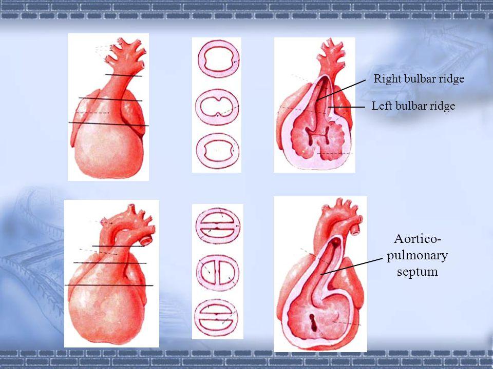 Aortico-pulmonary septum