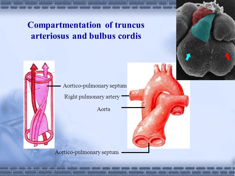 Compartmentation of truncus arteriosus and bulbus cordis