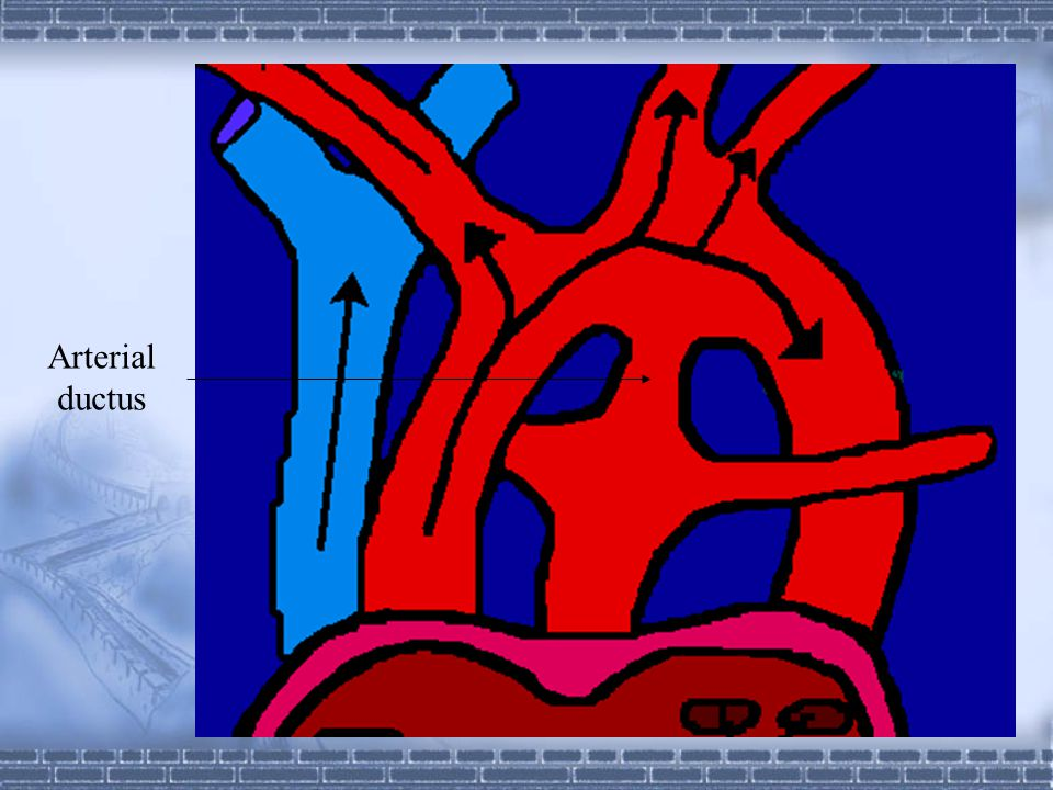 Arterial ductus