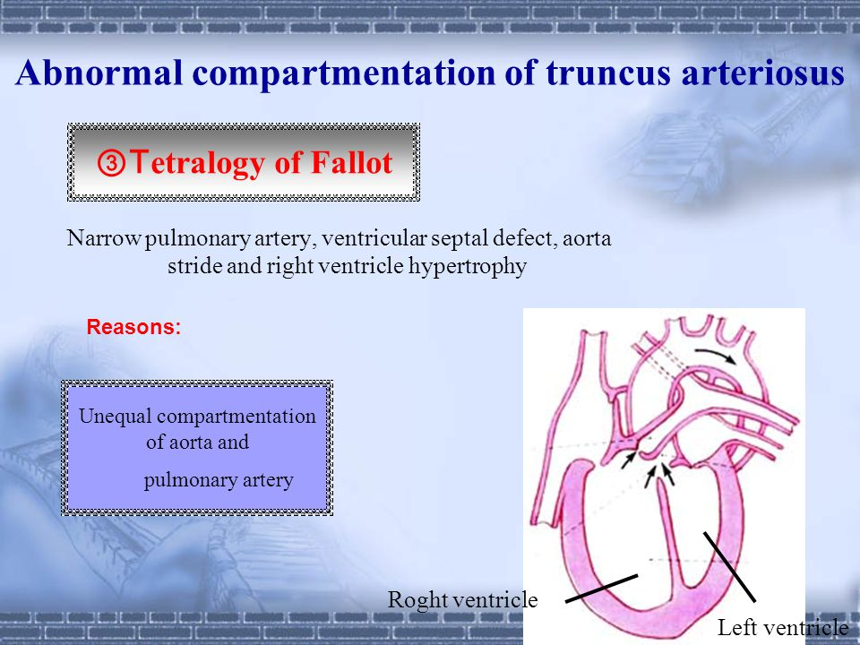 Abnormal compartmentation of truncus arteriosus