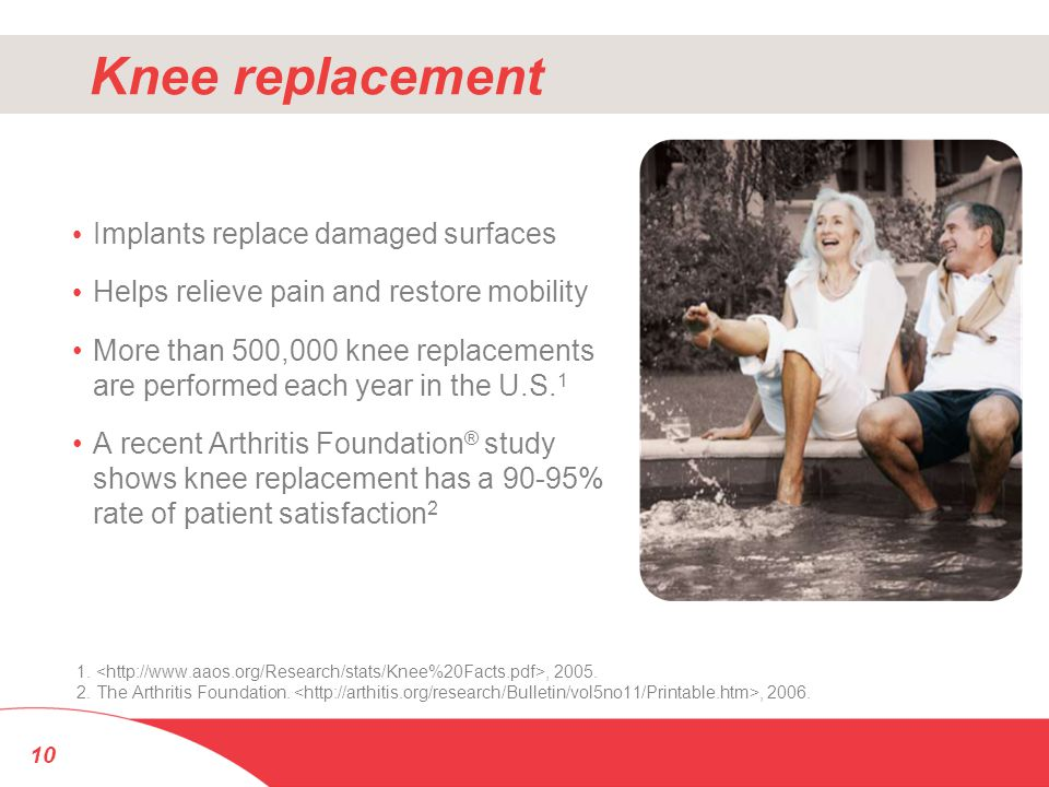 Knee replacement Implants replace damaged surfaces