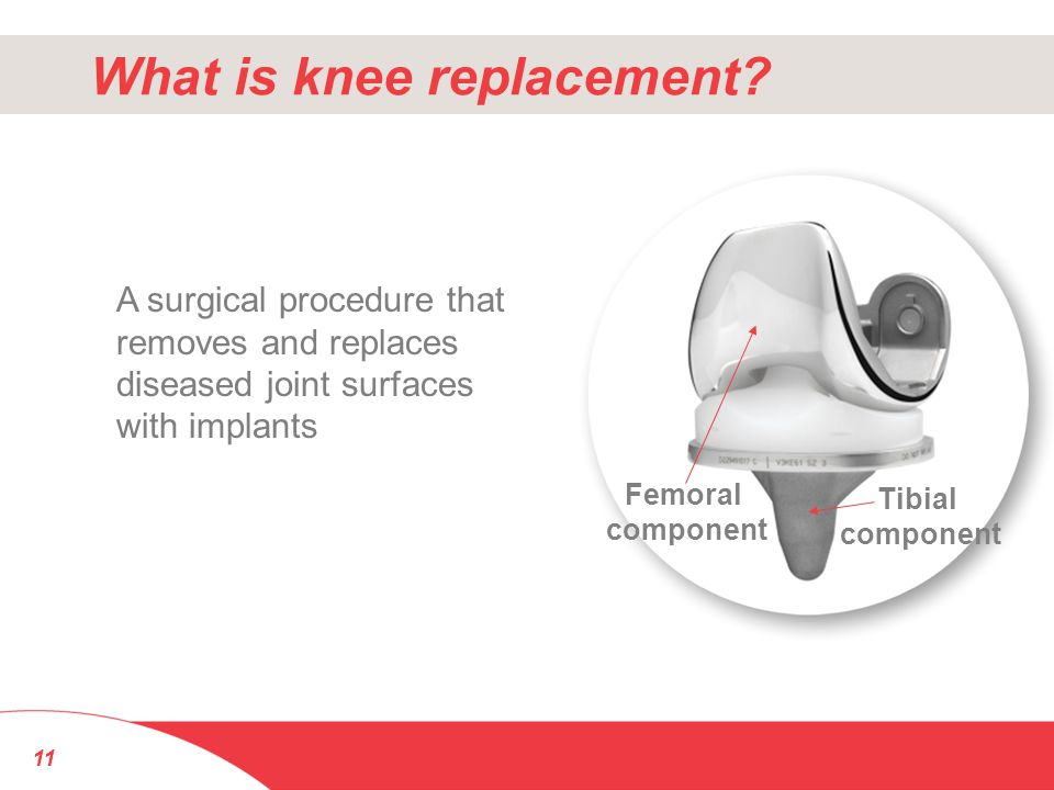 What is knee replacement