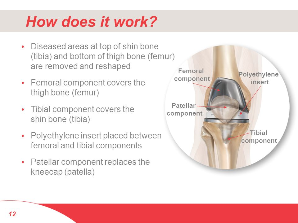 How does it work Diseased areas at top of shin bone (tibia) and bottom of thigh bone (femur) are removed and reshaped.