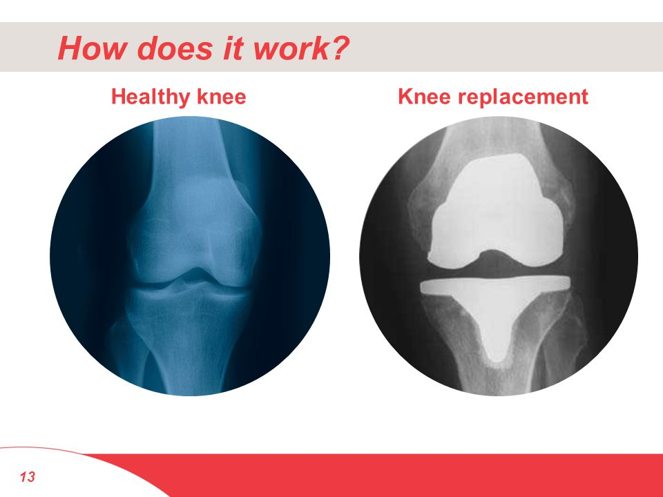 How does it work Healthy knee Knee replacement 13