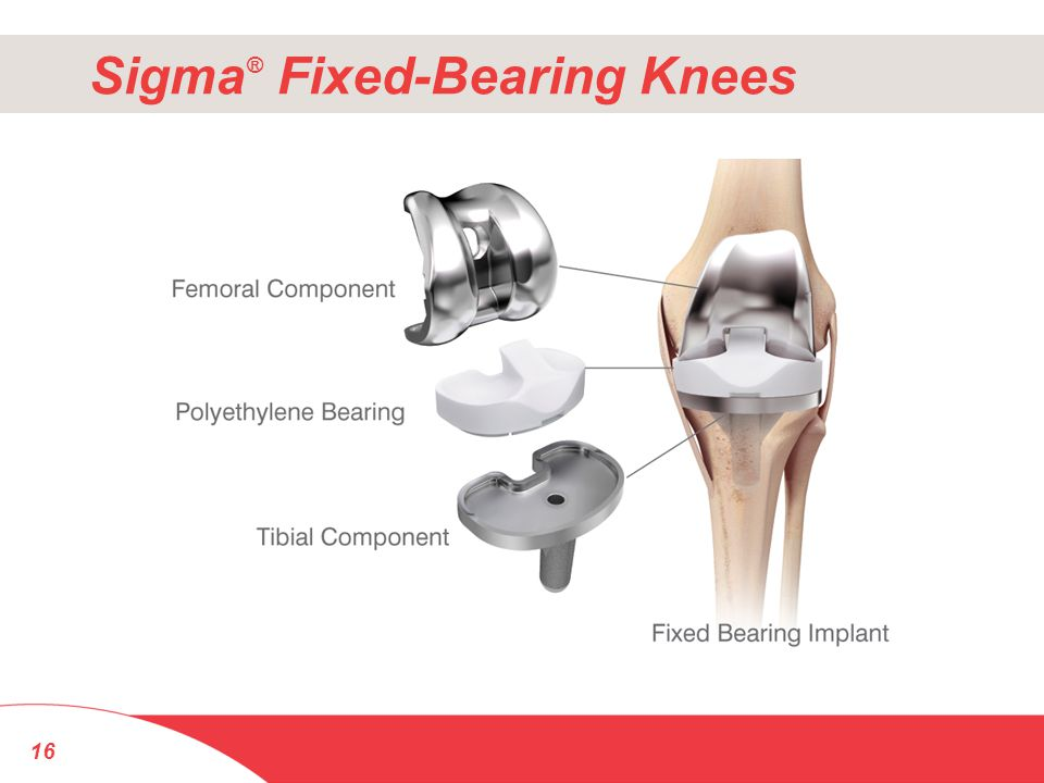 Sigma® Fixed-Bearing Knees