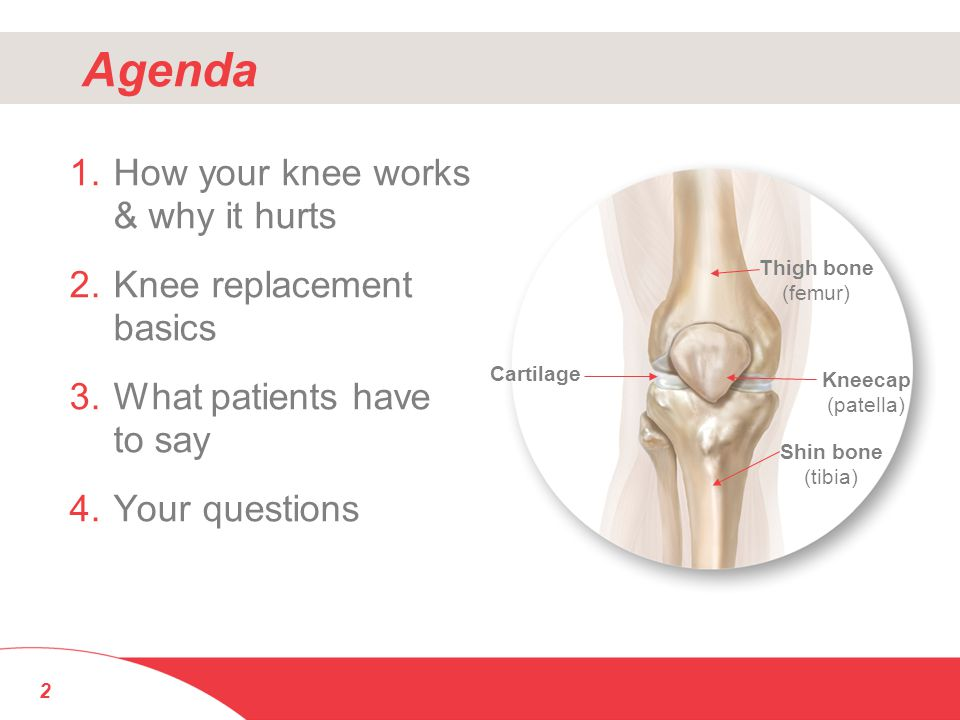 Agenda How your knee works & why it hurts Knee replacement basics