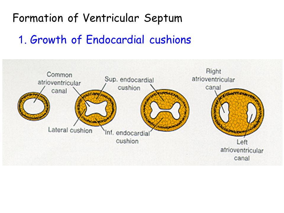 Formation of Ventricular Septum