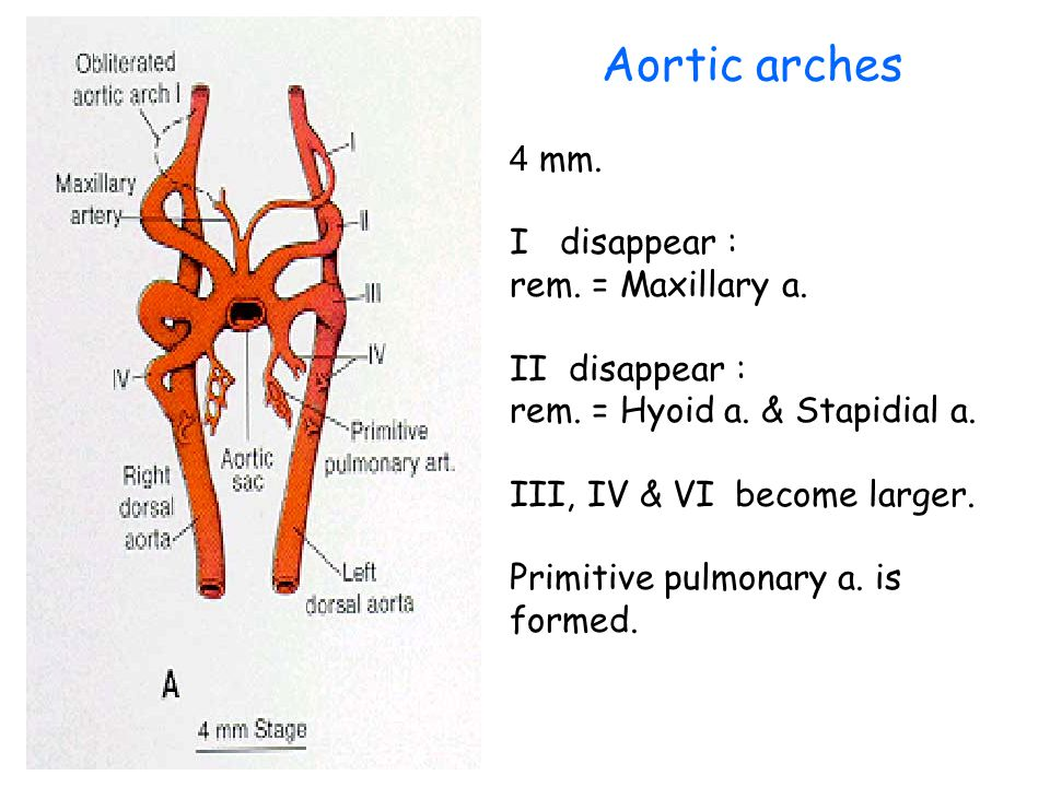 Aortic arches 4 mm. I disappear : rem. = Maxillary a. II disappear :