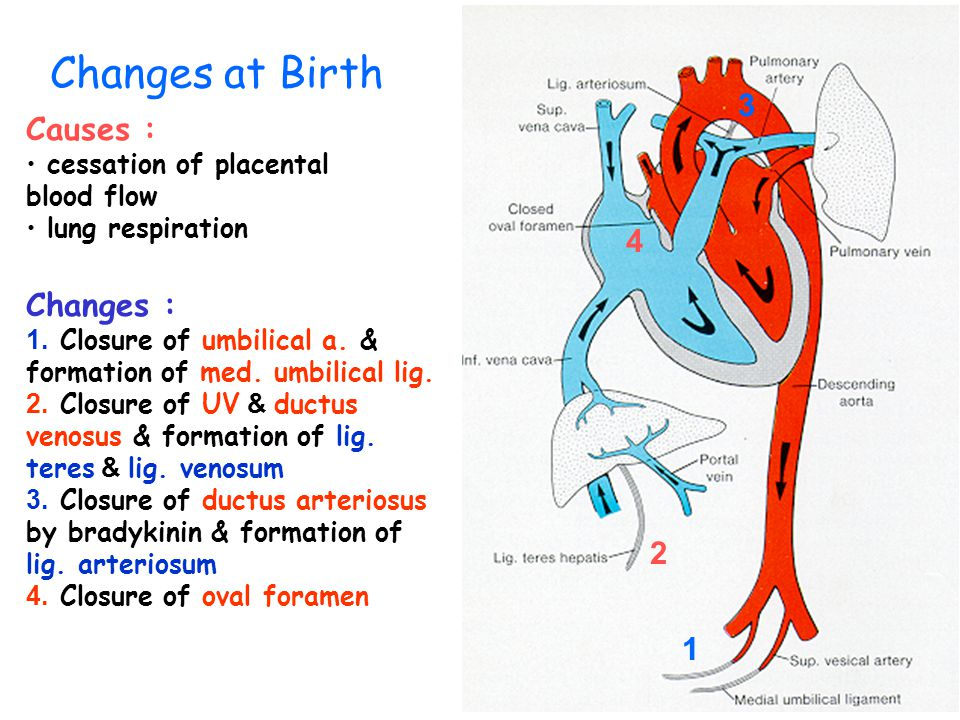 Changes at Birth 3 Causes : 4 Changes : 2 1
