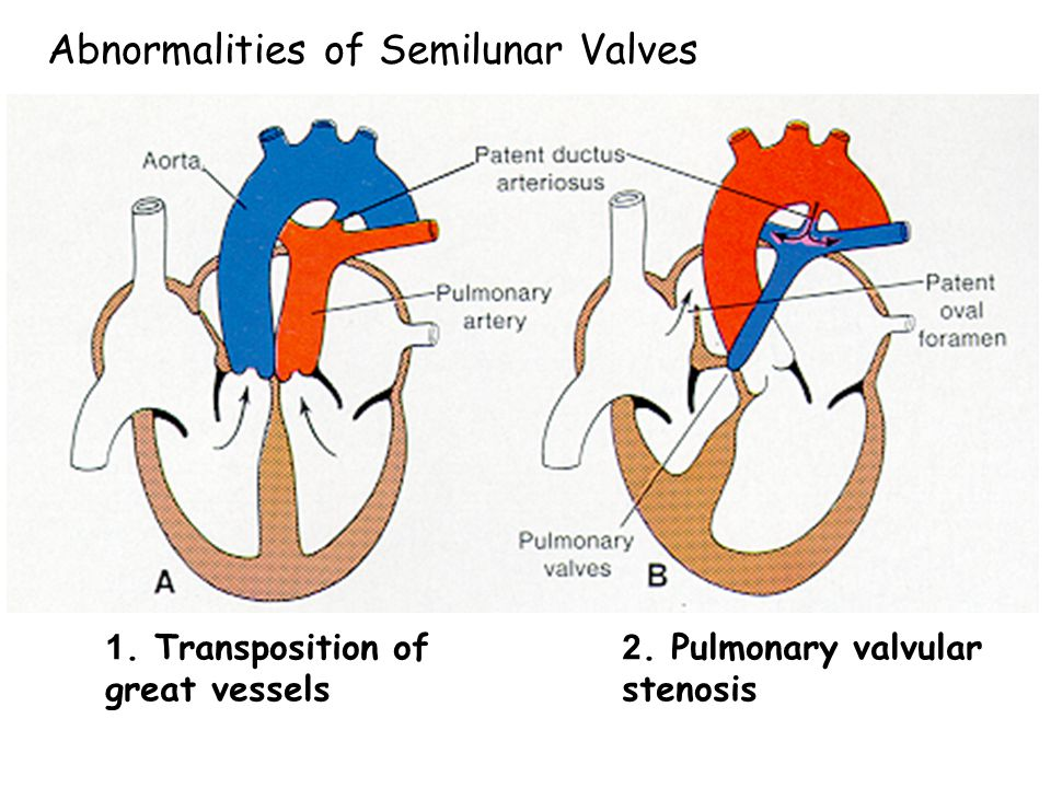 Abnormalities of Semilunar Valves