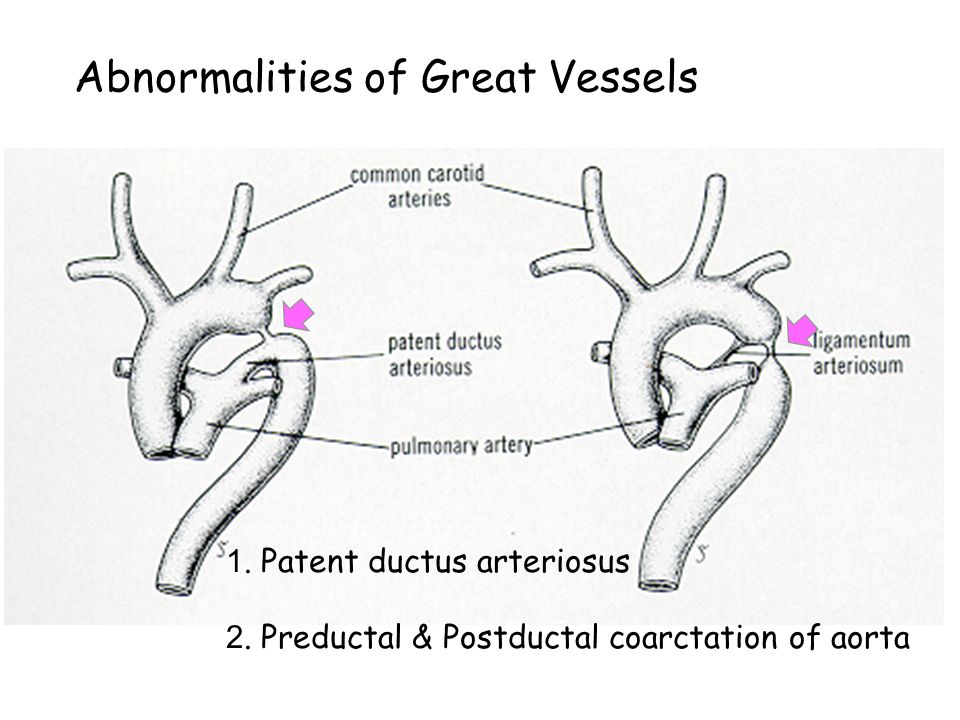 Abnormalities of Great Vessels