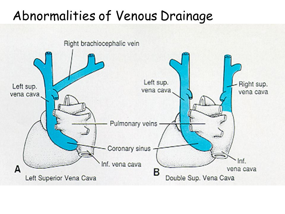 Abnormalities of Venous Drainage