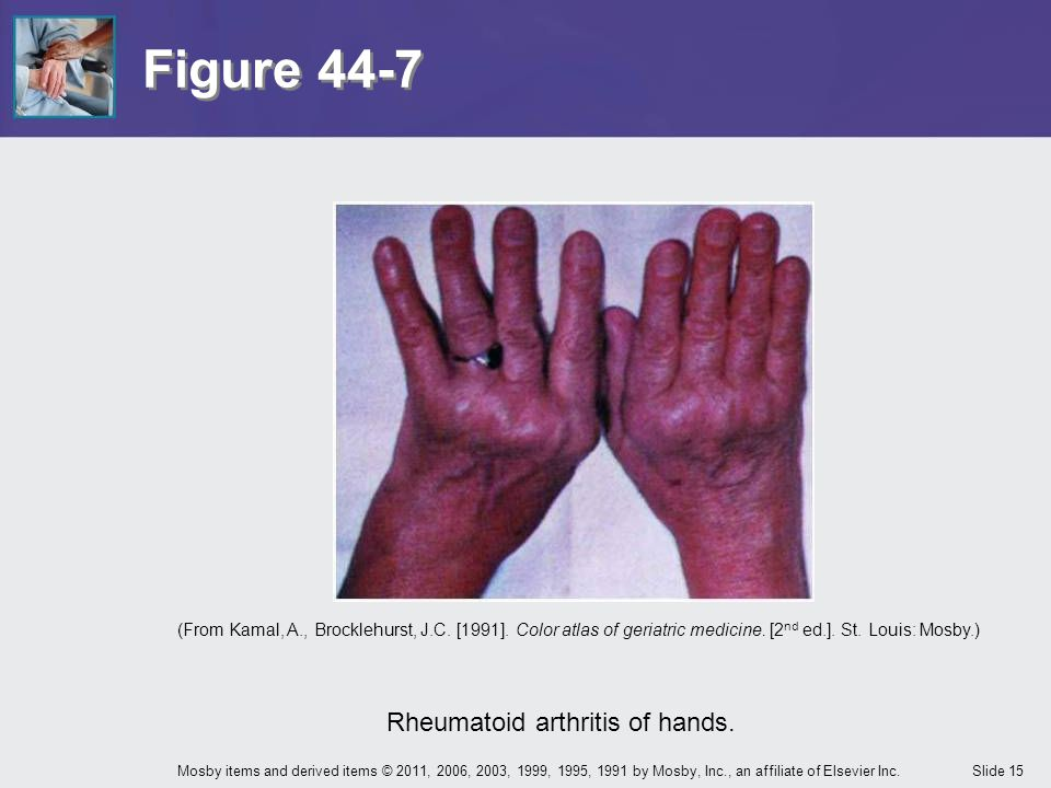 Rheumatoid arthritis of hands.