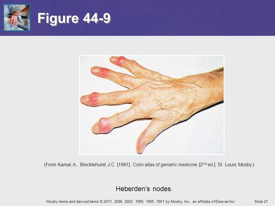 Figure 44-9 Heberden's nodes.