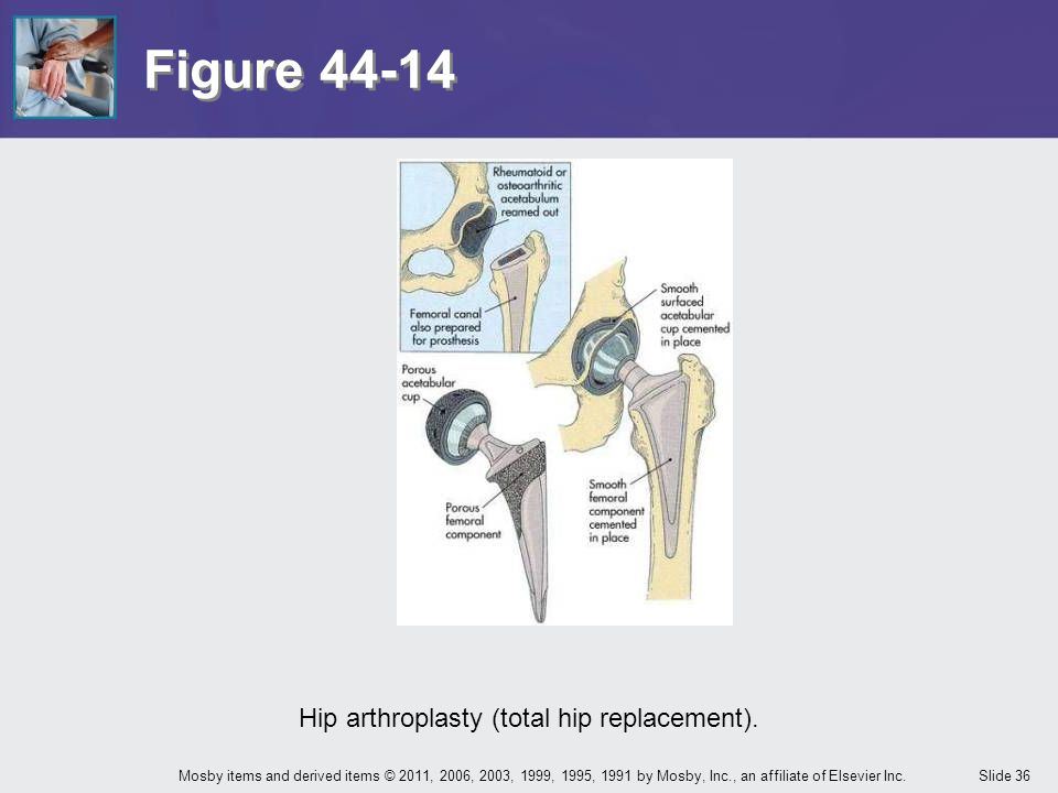 Hip arthroplasty (total hip replacement).