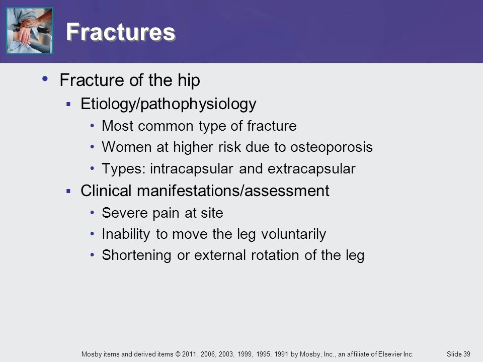 Fractures Fracture of the hip Etiology/pathophysiology