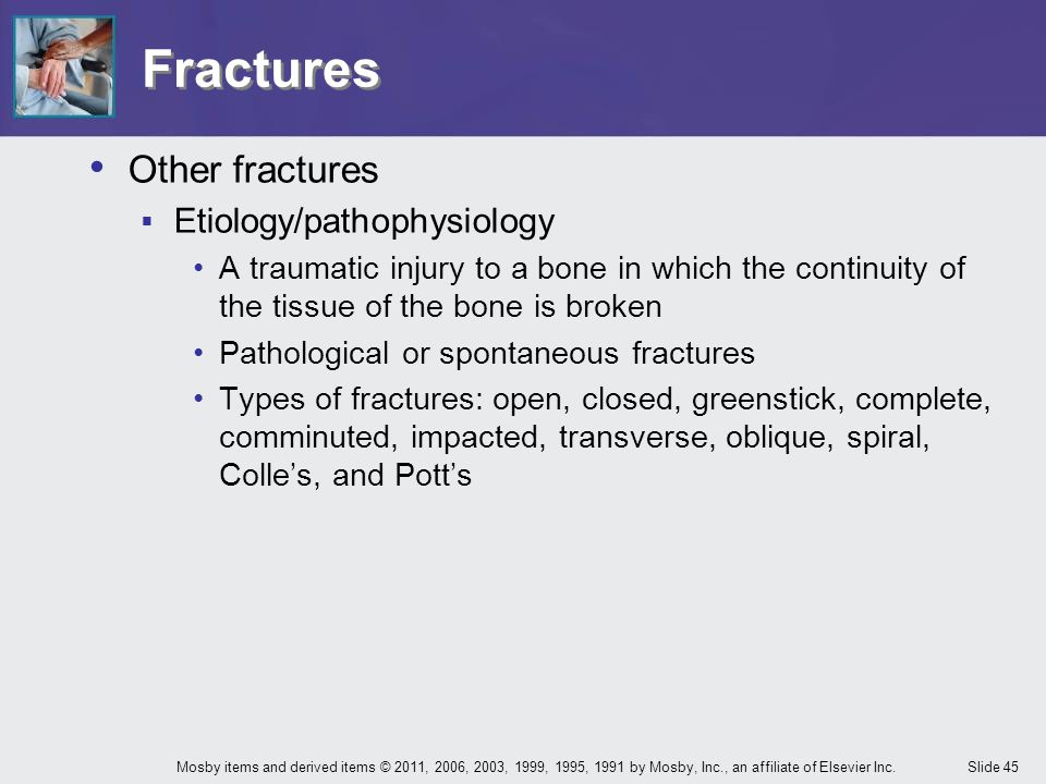 Fractures Other fractures Etiology/pathophysiology