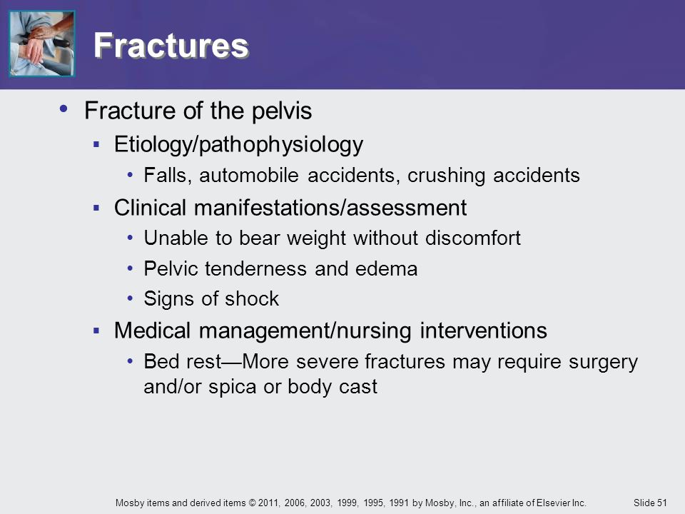 Fractures Fracture of the pelvis Etiology/pathophysiology