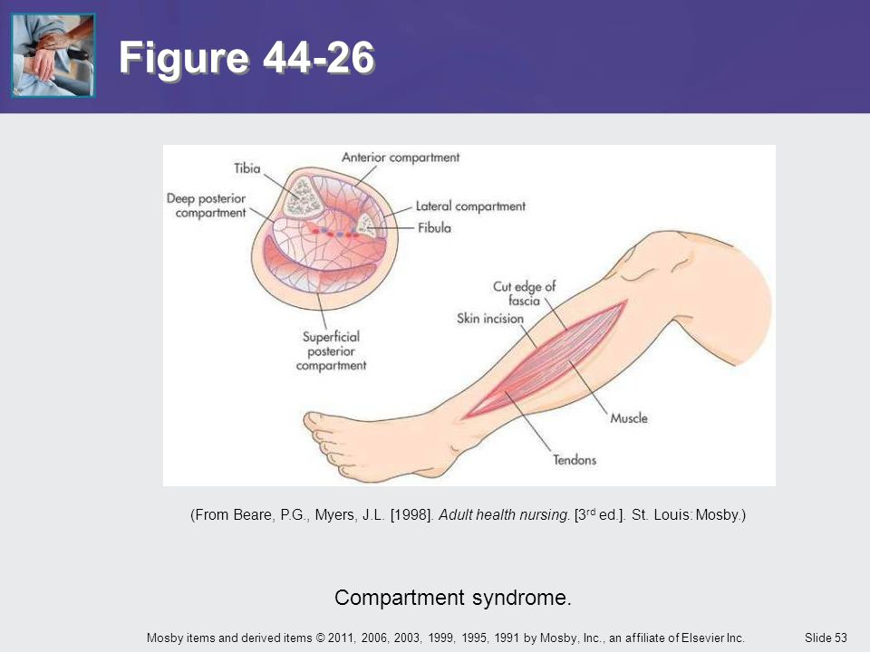 Figure 44-26 Compartment syndrome.