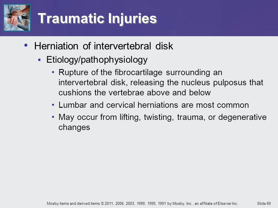 Traumatic Injuries Herniation of intervertebral disk