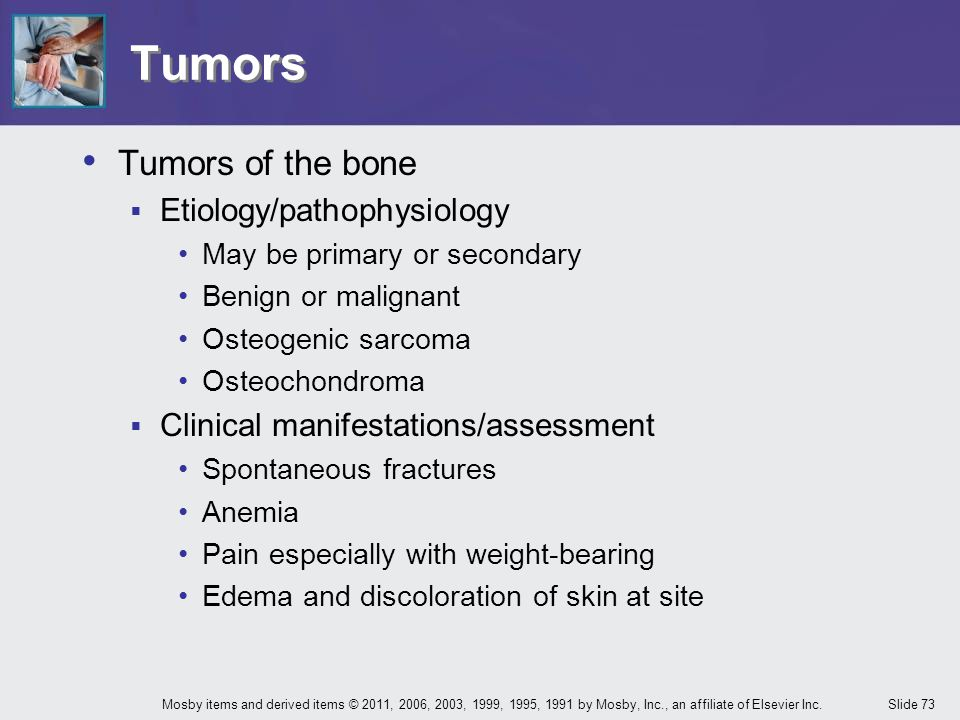 Tumors Tumors of the bone Etiology/pathophysiology