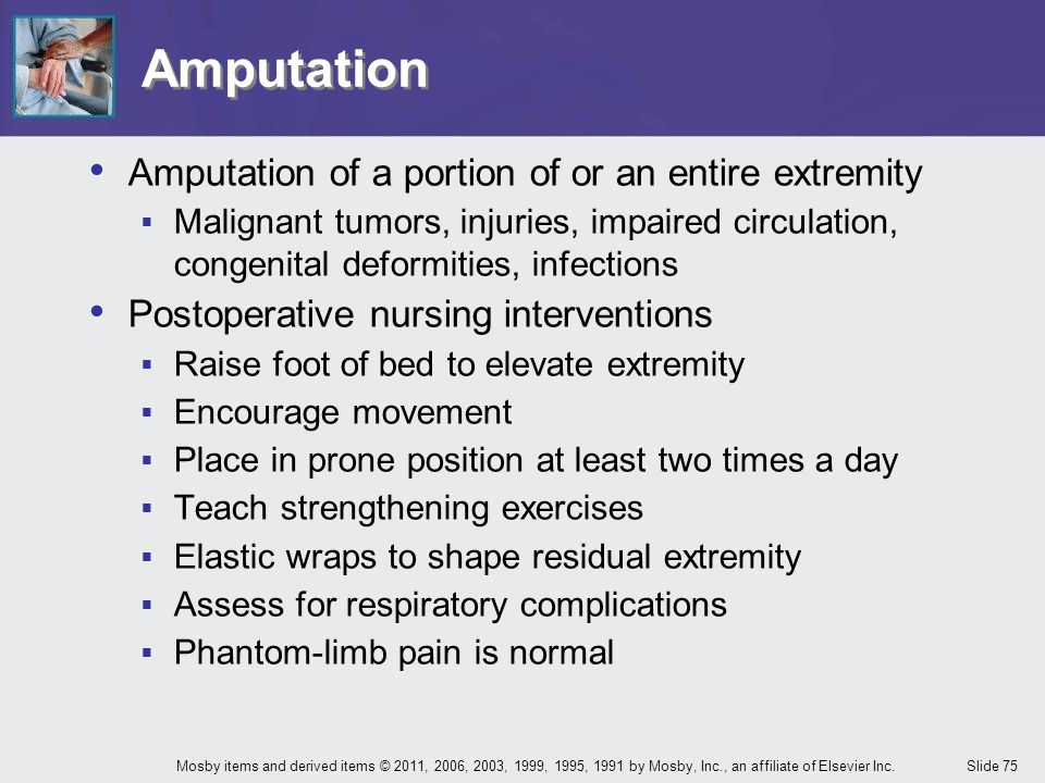 Amputation Amputation of a portion of or an entire extremity