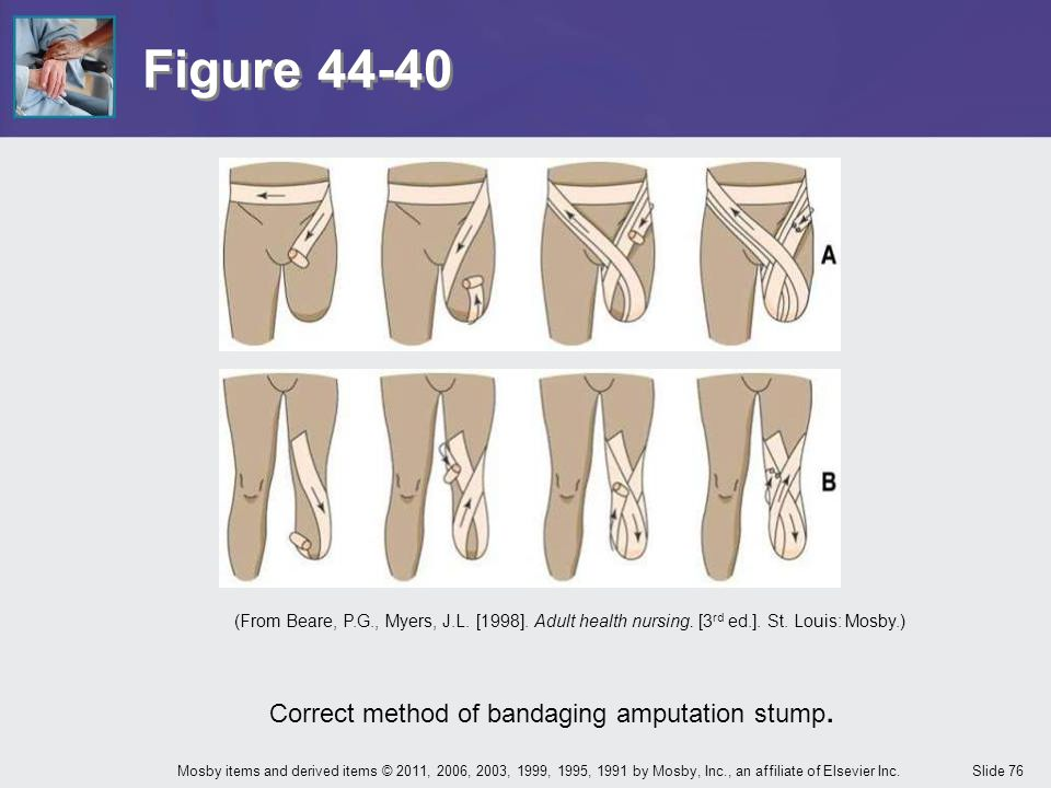 Correct method of bandaging amputation stump.