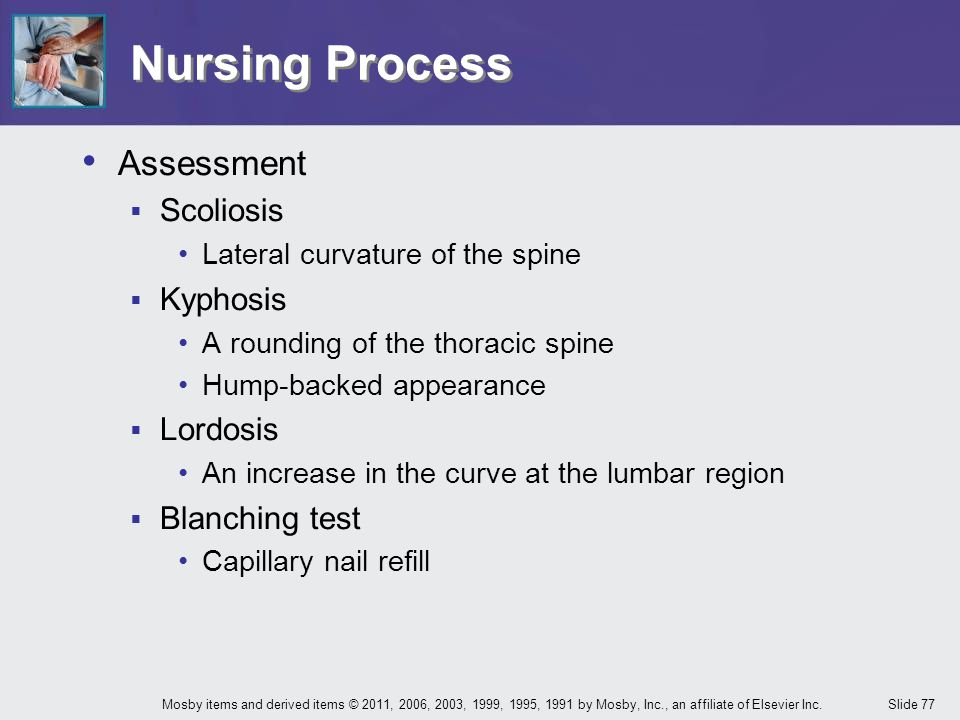 Nursing Process Assessment Scoliosis Kyphosis Lordosis Blanching test
