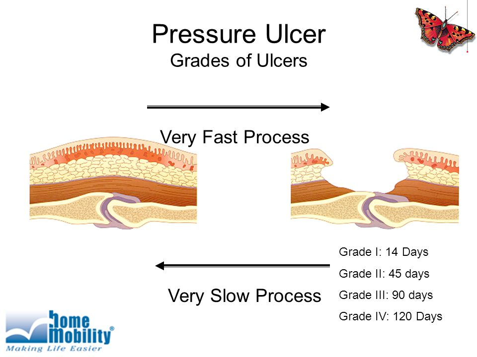 Pressure Ulcer Grades of Ulcers