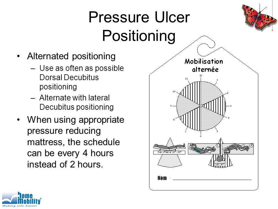 Pressure Ulcer Positioning