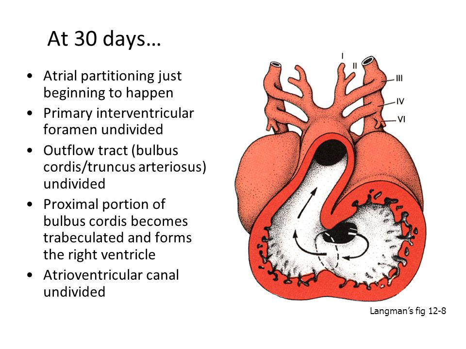 At 30 days… Atrial partitioning just beginning to happen