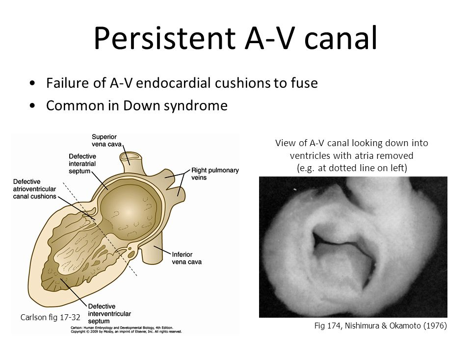 Persistent A-V canal Failure of A-V endocardial cushions to fuse