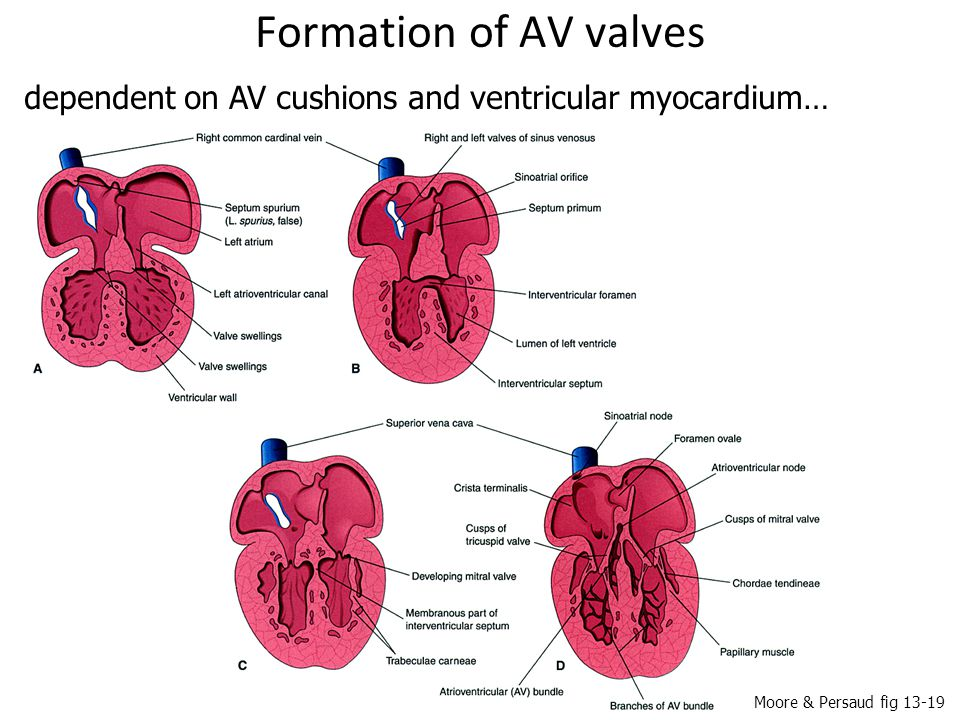 Formation of AV valves dependent on AV cushions and ventricular myocardium… Moore & Persaud fig 13-19.