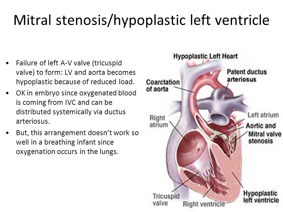 Mitral stenosis/hypoplastic left ventricle