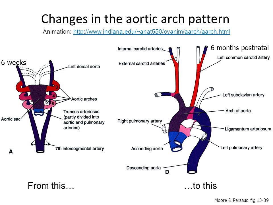 Changes in the aortic arch pattern