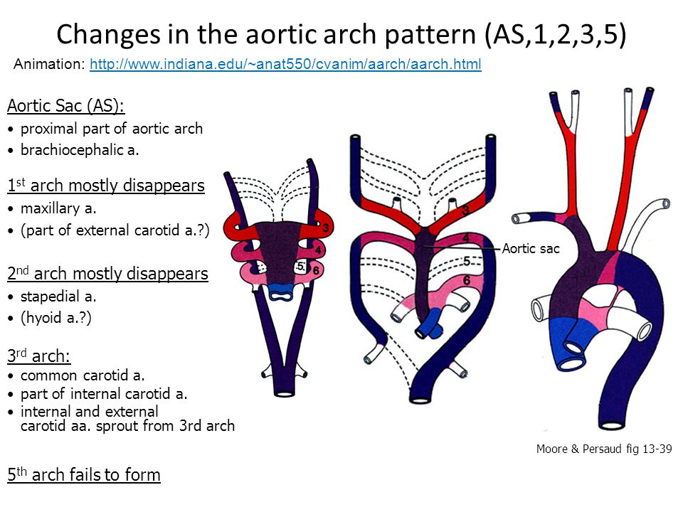 Changes in the aortic arch pattern (AS,1,2,3,5)