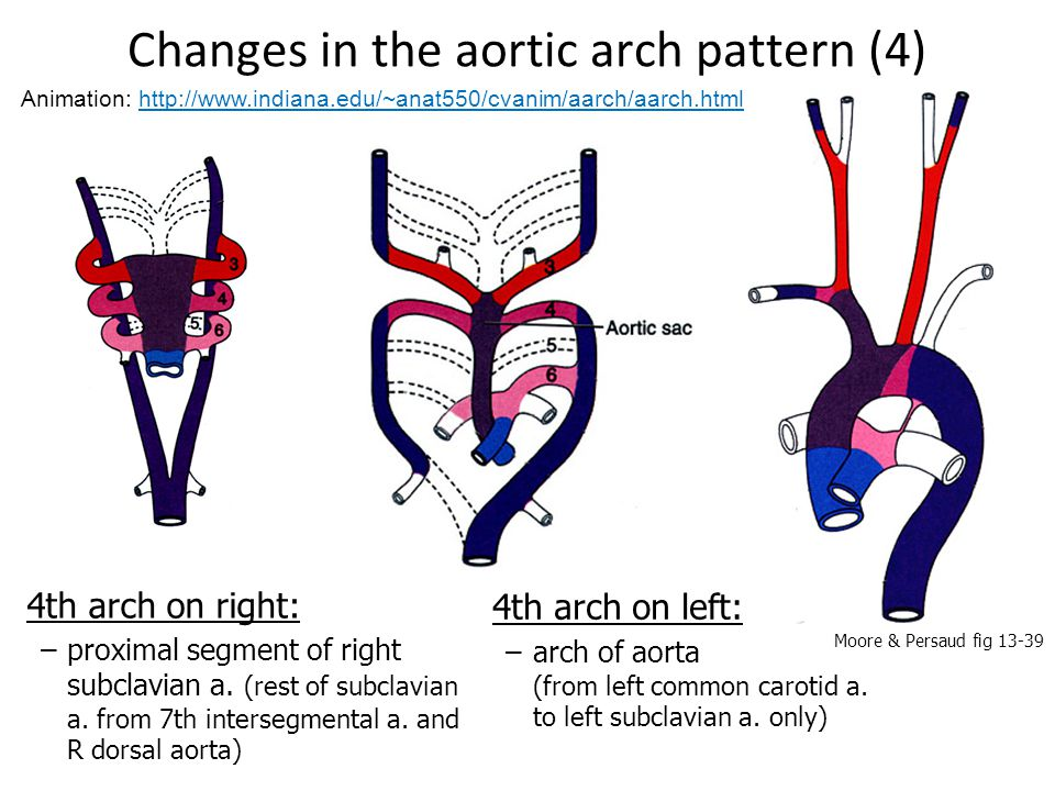 Changes in the aortic arch pattern (4)