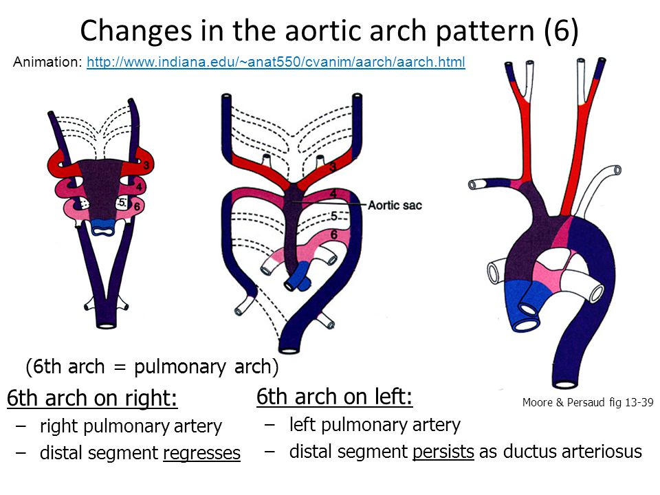 Changes in the aortic arch pattern (6)