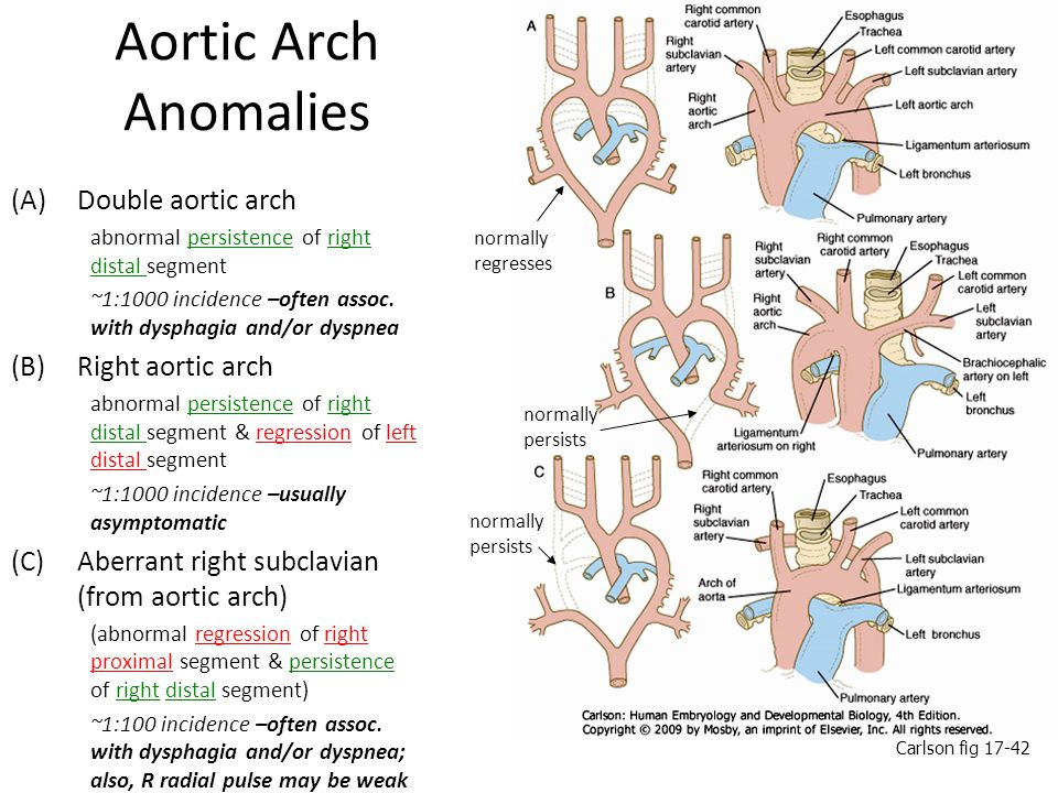 Aortic Arch Anomalies Double aortic arch Right aortic arch
