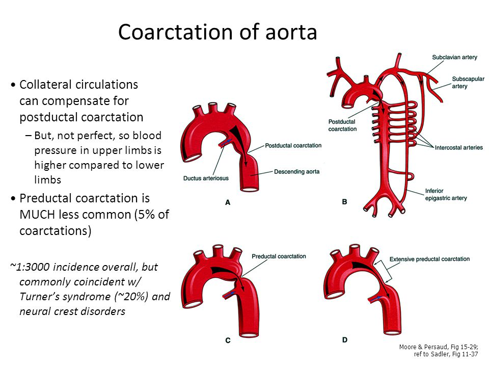Coarctation of aorta Collateral circulations can compensate for postductal coarctation.