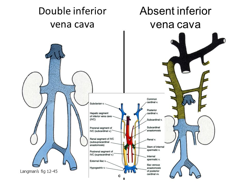 Double inferior vena cava